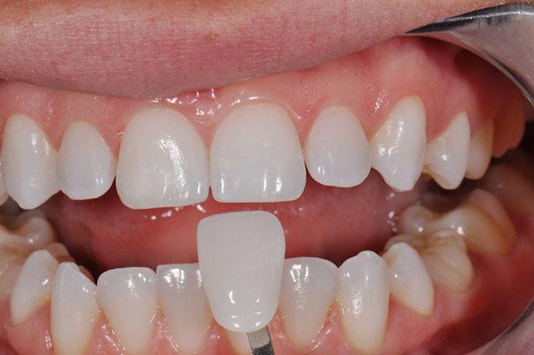 Giá bọc răng sứ cho răng cửa phụ thuộc vào dòng sứ bạn chọn