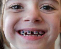 Có nhiều phương pháp khắc nhau có thể khắc phục triệt để tình trạng răng thưa