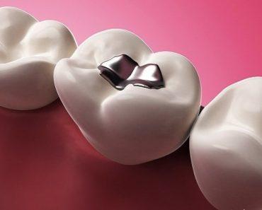 Khi răng xuất hiện các lỗ sâu thì bạn nên tiến hành trám răng sâu