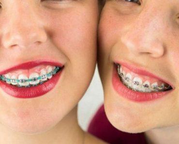 Không nên tháo niềng răng quá sớm kẻo ảnh hưởng đến cả quá trình niềng răng trước đó