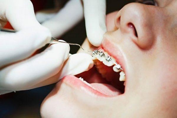 Bệnh nhân không thể tự ý tháo niềng răng mắc cài cố định