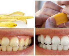 Cách lấy cao răng tại nhà bằng hoa quả với vỏ chuối