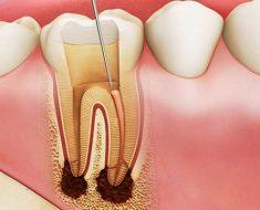 Lấy tủy răng chỉ được thực hiện khi thực sự cần thiết