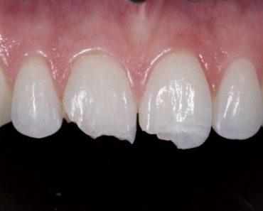 Mài nhỏ răng cửa khi răng bị gãy vỡ, sứt mẻ nặng