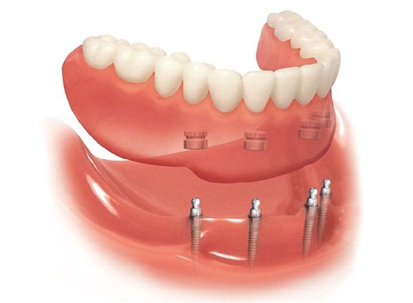 Cấy ghép Mini Implant có chi phí thấp hơn Implant truyền thống