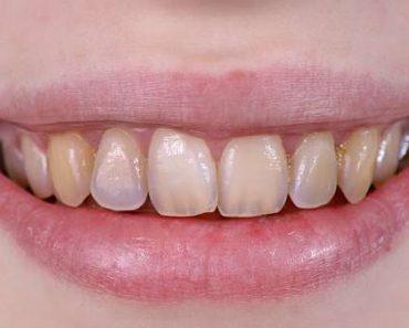 Mòn men răng là hiện tượng khá phổ biến