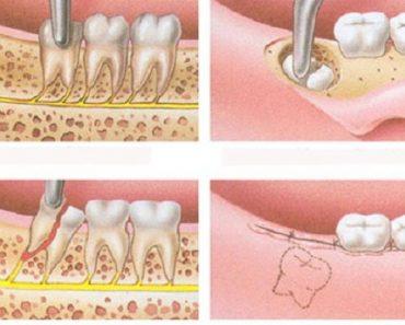 Nhổ răng khôn cũng giống như các ca tiểu phẫu khác thì chảy máu là điều bình thường