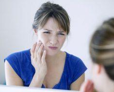 Có trường hợp nhổ răng khôn còn sót chân răng gây sưng đau, viêm nhiễm kéo dài