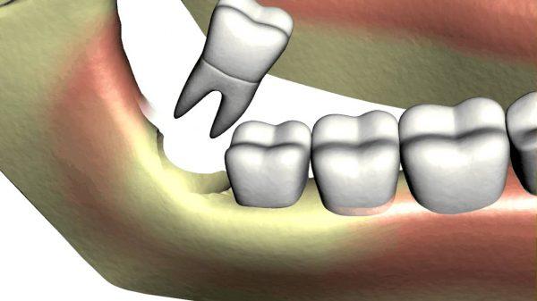 Nhổ răng khôn để lại lỗ là mầm mống của vi khuẩn gây bệnh răng miệng