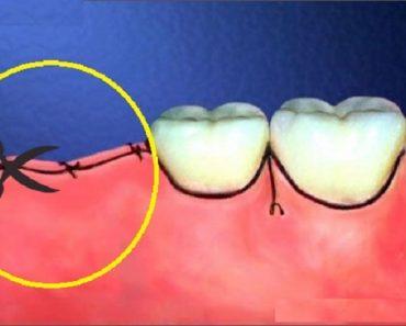 Nhổ răng khôn bằng phương pháp mới không cần phải cắt chỉ