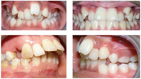 Răng càng khấp khểnh, lệch lạc thì thời gian niềng răng càng lâu