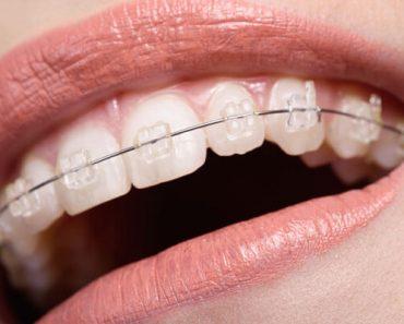 Niềng răng thẩm mỹ là giải pháp cải thiện hàm răng lệch lạc, tỷ lệ xấu
