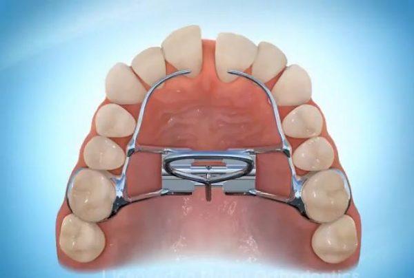 Niềng răng bằng khí cụ nong hàm giúp rút ngắn thời gian niềng răng
