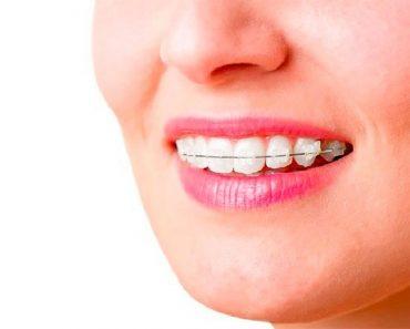 Niềng răng khắc phục tình trạng răng mọc sai biệt giúp bạn có nụ cười đẹp hơn