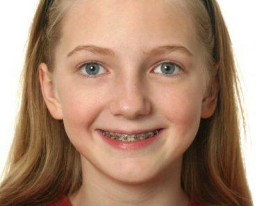 Có nhiều phương pháp niềng răng cho trẻ với mức giá và ưu điểm riêng