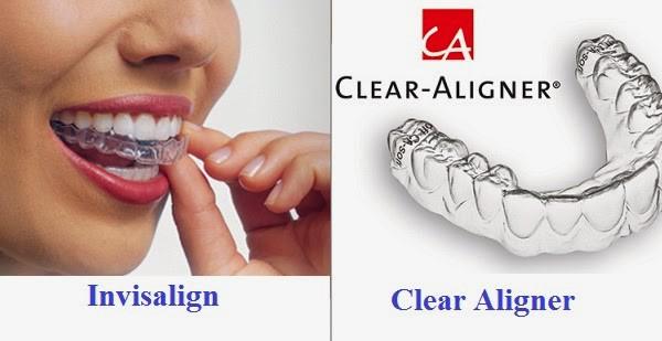 Niềng răng 3D Clear Aligner có dạng khay trong suốt giống với khay Invisalign