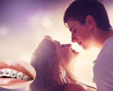 Niềng răng có hôn được không? là thắc mắc của nhiều người