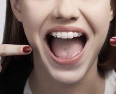 Chi phí niềng răng cửa từ 25 – 120 triệu đồng tùy từng loại
