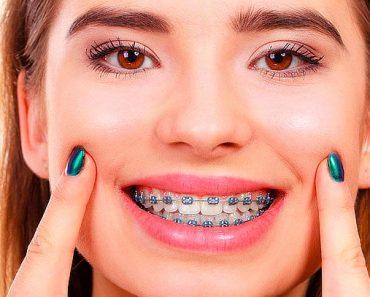 """Niềng răng có thể khắc phục được """"khuyết điểm"""" bị hở lợi khi cười"""