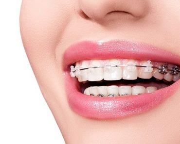 Niềng răng giúp bạn sở hữu nụ cười đẹp hơn