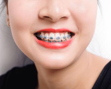 Nhiều bạn sau khi tháo niềng răng được khen đẹp như vừa phẫu thuật thẩm mỹ