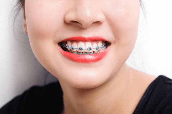 Niềng răng giúp khuôn mặt khả ái hơn