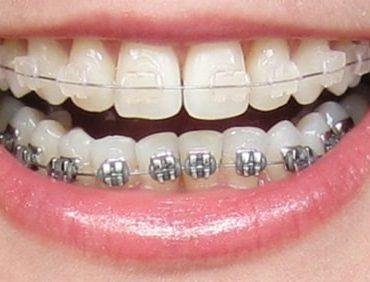 Nhiều người niềng răng thẩm mỹ với mong muốn sở hữu nụ cười đẹp hơn