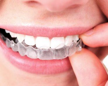 Niềng răng trong suốt Invisalign bệnh nhân dễ dàng tháo lắp để vệ sinh và ăn uống