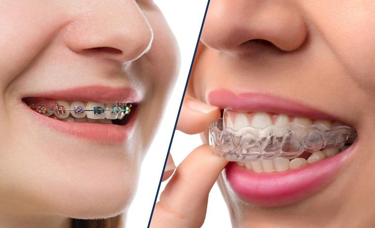 Niềng răng invisalign có nhiều ưu điểm nổi bật so với phương pháp niềng răng bằng mắc cài truyền thống