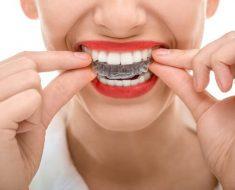 Phương pháp niềng răng không mắc cài có chi phí cao hơn
