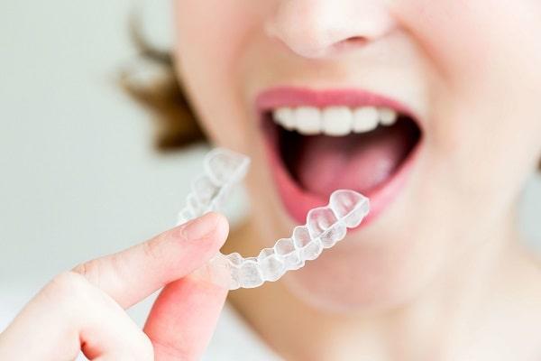 Niềng răng không mắc cài – Bạn có thể tự thay khay niềng tại nhà