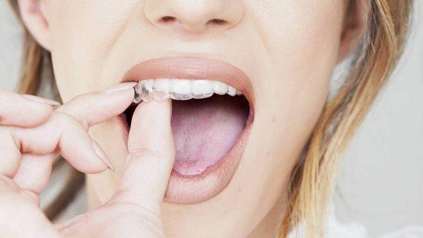 Niềng răng không mắc cài – Phương pháp chỉnh nha mới nhất hiện nay