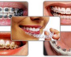 Có nhiều phương pháp niềng răng cho bệnh nhân lựa chọn