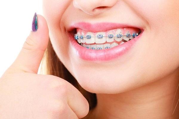Niềng răng mắc cài sứ hiệu quả không thua kém gì so với niềng răng mắc cài kim loại