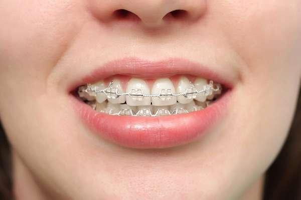 Niềng răng sứ thẩm mỹ có chi phí thấp hơn niềng răng invisalign khá nhiều