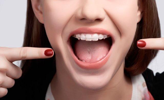 Niềng răng mắc cài sứ có nhiều ưu điểm vượt trội