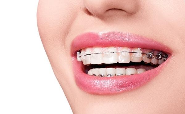 Niềng răng mắc cài sứ đảm bảo tính thẩm mỹ hơn so với mắc cài kim loại