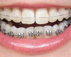 Sau khi niềng răng 1 – 2 tuần sẽ cảm thấy đau và khó chịu một chút