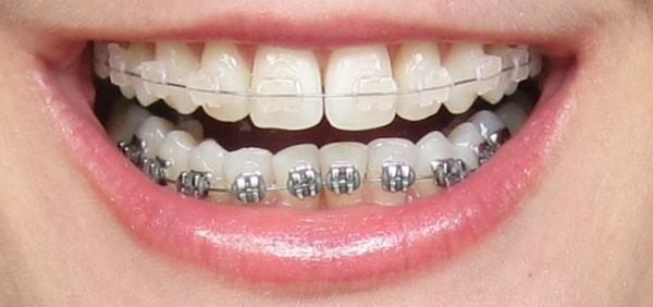 Niềng răng khắc phục tình trạng móm cho bệnh nhân