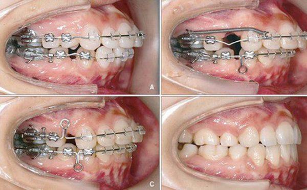 Niềng răng phải nhổ răng là điều cần thiết để áp dụng phương pháp này