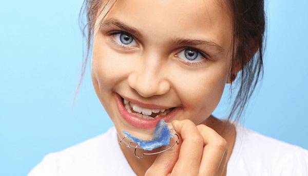 Niềng răng ốc nông rộng phù hợp cho trẻ em từ 6 – 16 tuổi