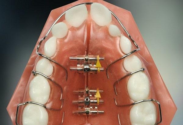 Áp dụng niềng răng ốc nông rộng cần đặc biệt chú ý