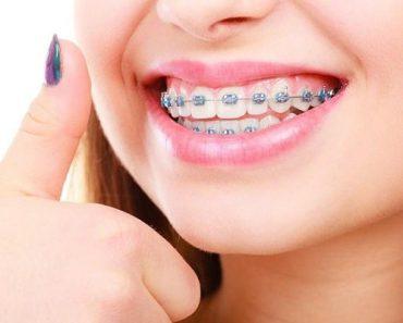 Niềng răng giúp cải thiện tình trạng răng quặp