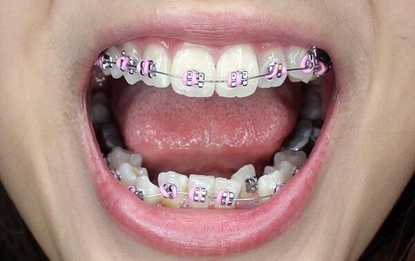 Niềng răng sai cách dẫn đến hậu quả khôn lường