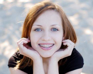 Niềng răng thẩm mỹ giúp khuôn mặt khả ái hơn