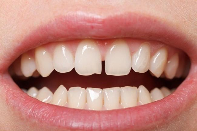 """Niềng răng giúp chúng ta """"tạm biệt""""hàm răng thưa kém duyên"""