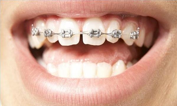Khi niềng răng bạn sẽ cảm thấy đau nhức khoảng 1 – 2 tuần đầu