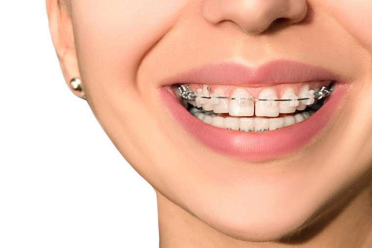 Niềng răng thưa giá từ 25 triệu – 120 triệu đồng tùy từng loại