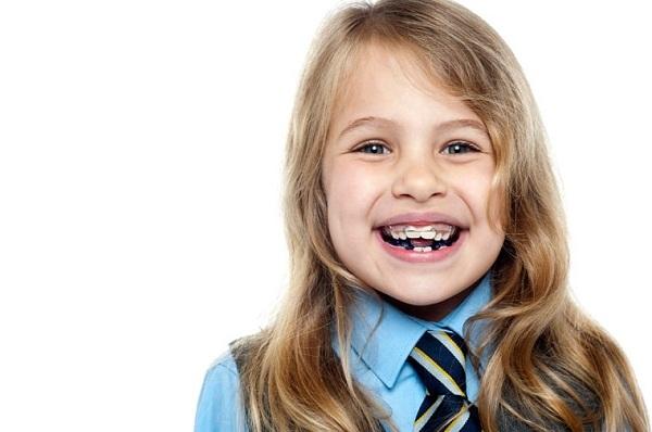 Niềng răng ở trẻ em dễ thực hiện