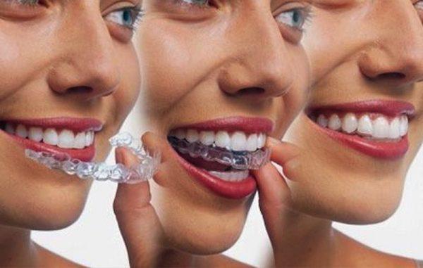 Niềng răng trong suốt không mắc cài dễ dàng tháo lắp để vệ sinh